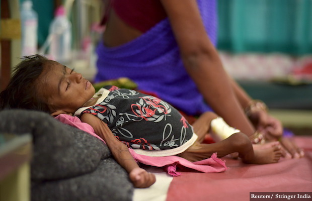 Two-month-old Jyoti lies in a bed in a malnutrition intensive care unit in Dharbhanga Medical College in Dharbhanga
