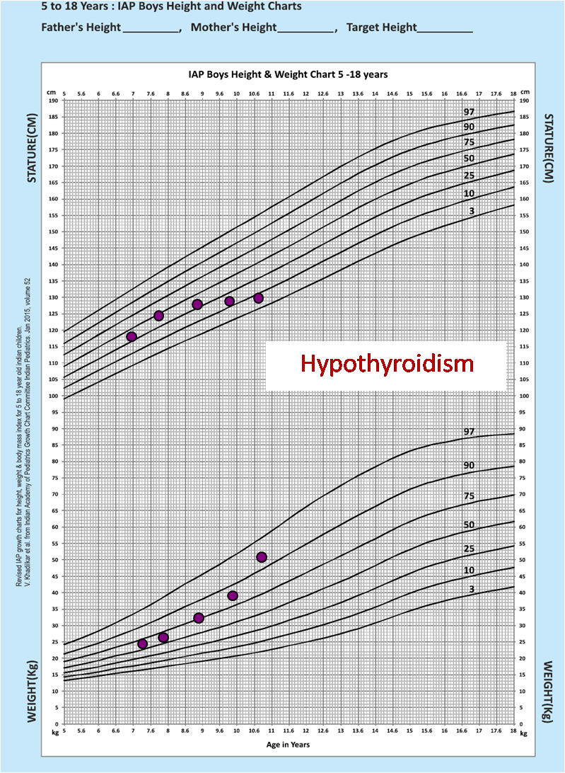 Hypothyroidism showing as growth failure on new iap chart